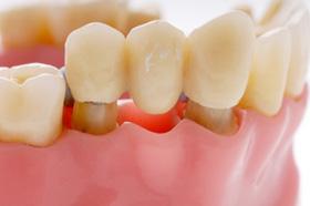 Сколько служат зубные протезы?