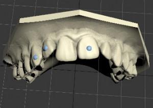 3D модель прикуса пациента