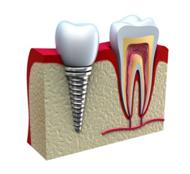 Типи зубної імплантації