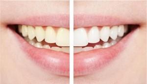 Фотовідбілювання зубів