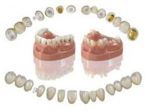 протезирование-зубов-в-сумах
