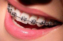 Зачем ровняют зубы?