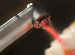 стоматологический лазер