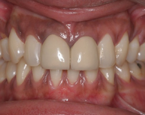 Is it possible immediately to install the implant into the hole of just extracted tooth?