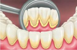 убрать зубной камень