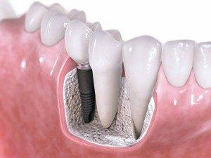 зубные имплантаты-сумы