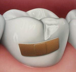 Резорбция зуба