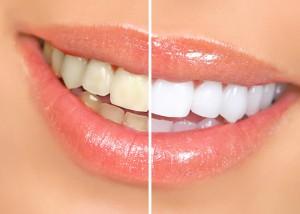 Внутриканальное отбеливание зубов