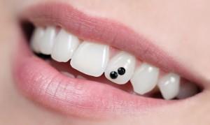Стразы для зубов