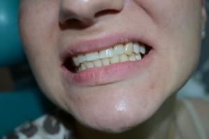 Адгезивный протез выглядит как свой зуб и незаметен