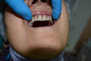 Перекрывающий протез верхней челюсти установлен в полости рта