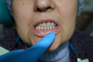 Съемные протезы установлены в полости рта
