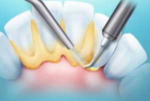 Чистка зубов
