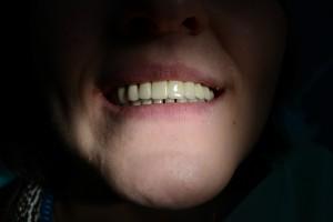 Металлокерамический мостовидный протез установлен в полости рта