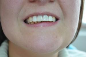 После реставрации зубов