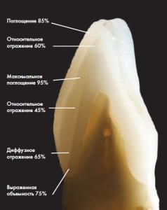 наращивание зубов в Сумах