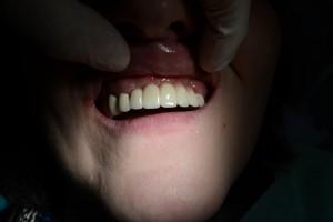 В пришеечной области зубов нанесена керамическая десневая маска