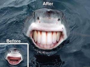 до и после стоматолога