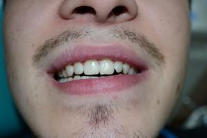 После реставрации сколотого зуба