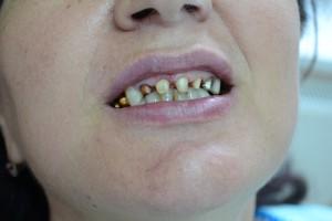 Фото после обточки зубов под металлокерамику Vita VM 13