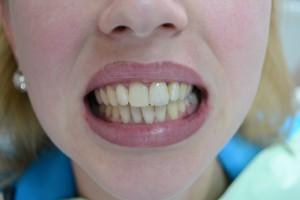 После реставрации зуба фотополимером Мегафил (Германия)