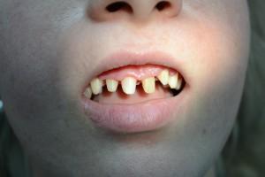 Обточка 6 единиц зубов