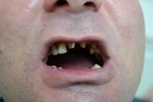 До протезирования зубов металлокерамикой Vita