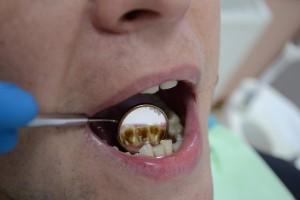 Текущая ситуация до чистки зубов