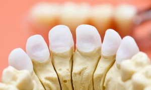 Как ставят зубную коронку