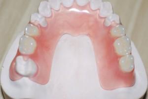 Силиконовый зубной протез
