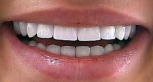 Циркониевые зубные коронки в Сумах
