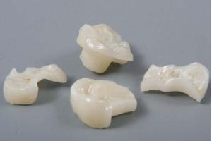 Зубные вкладки и их виды