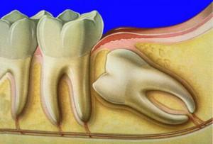 ретинированные зубы