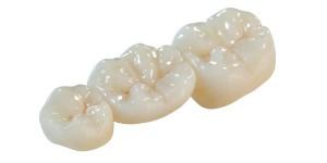 зубная коронка Сумы