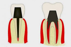 Культевая вкладка или зубной штифт