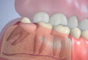 Лечение зуба мудрости