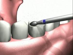 Препарирование зубов при шинировании и установке протезов