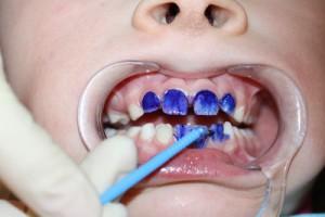 Серебрение зубов – что это