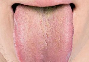 Убрать налет на языке