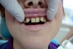 Адентия и смещение зубов