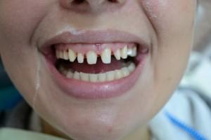 Все обточенные зубы оставлены живыми