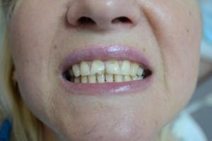 На передних зубах клиновидные дефекты и трещины