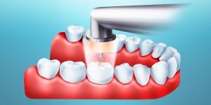 озон в стоматологии
