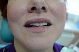 Сделаны адгезивные протезы и реставрированы зубы