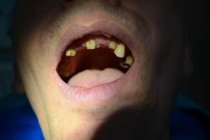 До протезирования зубов