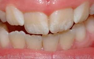 Эрозия зубов и причины ее возникновения