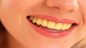 Желтые зубы. Устранение желтизны зубов