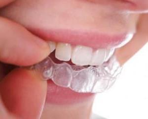 Зубные отбеливающие каппы