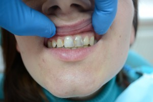 Как выглядит кариес передних зубов
