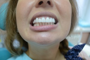 Отбеливание зубов винирами в Сумах результат работы